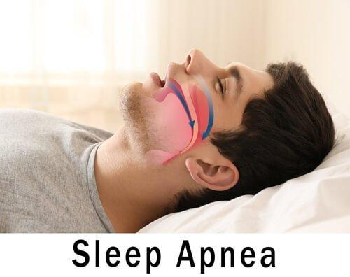 Obstructive Sleep Apnea Symptoms Causes Treatment