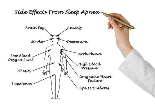 effects Obstructive Sleep Apnea